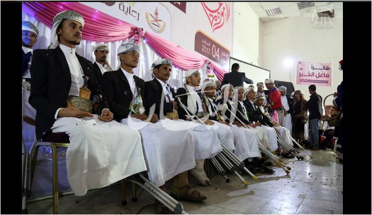 مبتورى الاقدام اليمنيين